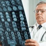 Delayed Diagnosis or Misdiagnosis